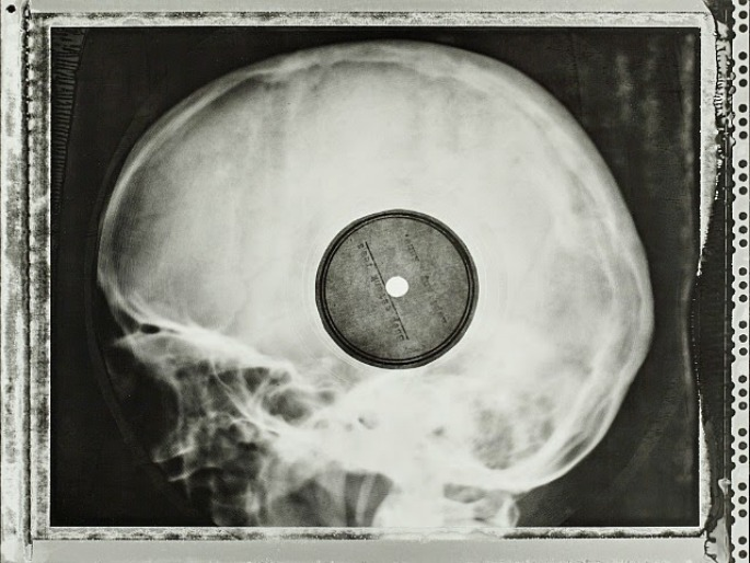 Check out these incredible images of Soviet-era bootleg records pressed on discarded X-rays
