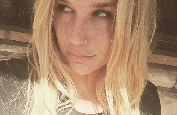 "Dr. Luke's label ""rescinded its approval"" for Kesha to perform at Billboard Awards"